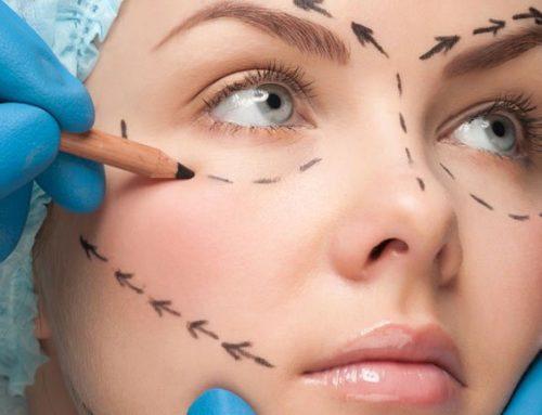 Chirurgia estetica e adolescenti: quello che nessuno sospettava